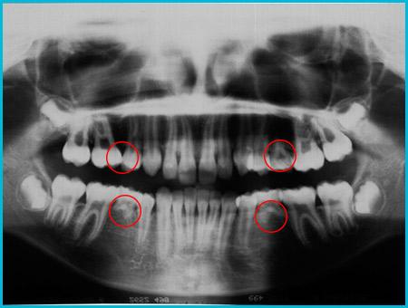 agenesia denti permanenti